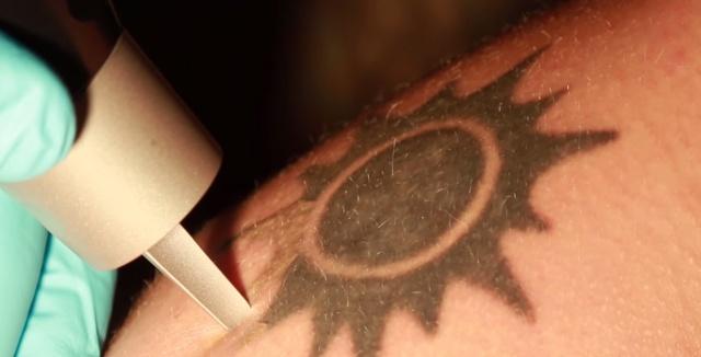 afairesi-tatouaz-me-leizer-laser-tatto-remove